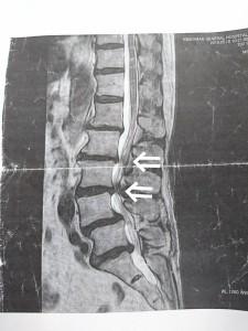 狭窄症MRI